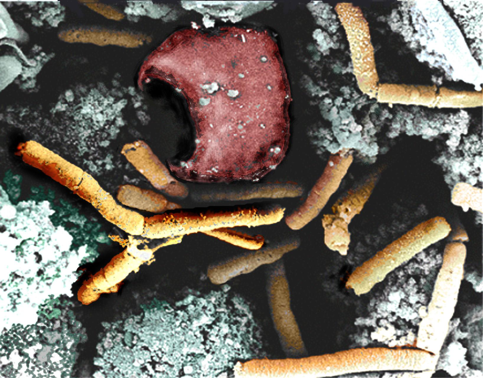 """""""Syberyjski wrzód"""". Pierwszy od 20 lat przypadek pojawienia się groźnej choroby na Białorusi"""