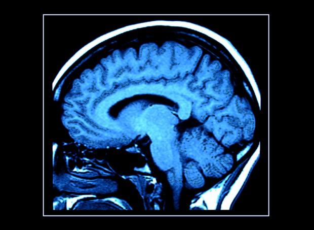 NAUKA: Co dzieje się z niewyspanym mózgiem?