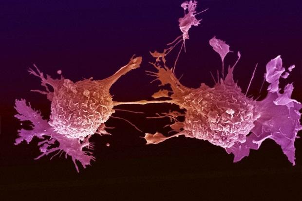 """Przełomowe odkrycie w onkologii. """"Żywy lek"""" może chronić przed nawrotami raka nawet do końca życia"""