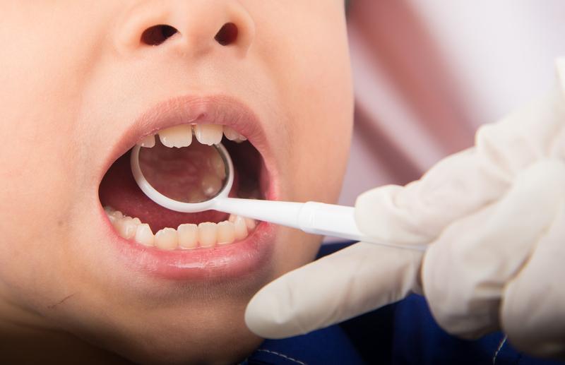 Dentysta oskarżony po śmierci 4-letniego pacjenta