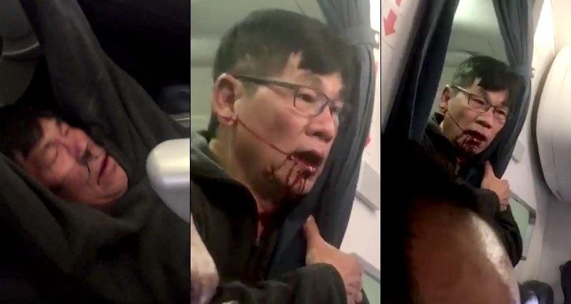 United zawarły porozumienie ws. pasażera usuniętego siłą z pokładu samolotu