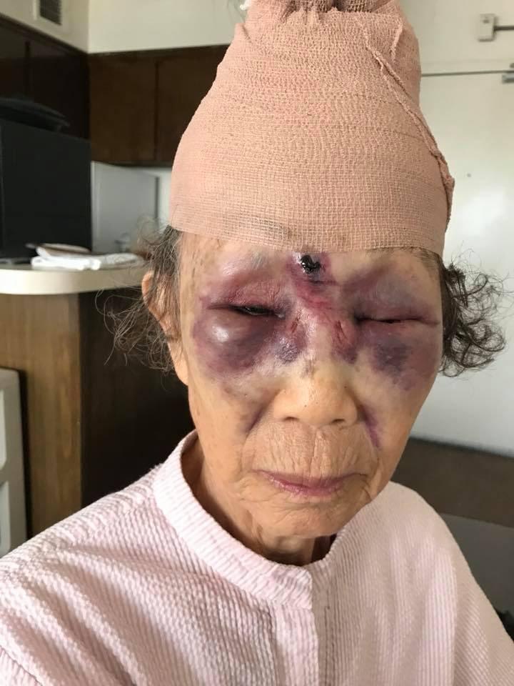 86-latka brutalnie zaatakowana na ulicy w Los Angeles