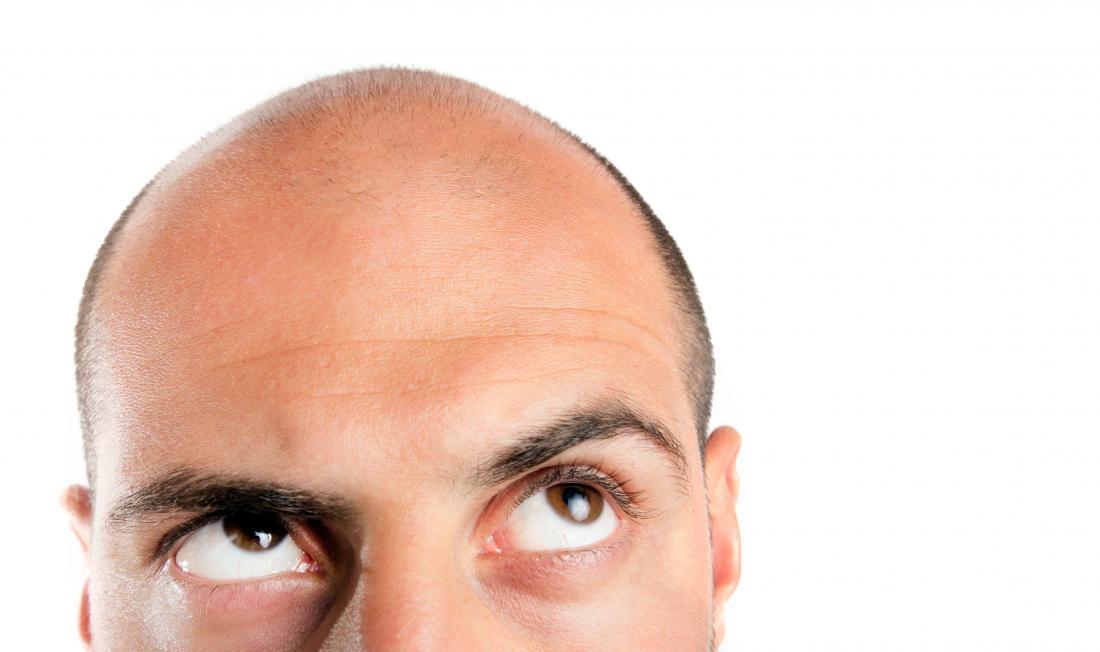 Frytki z McDonald's mają właściwości zapobiegające… łysieniu