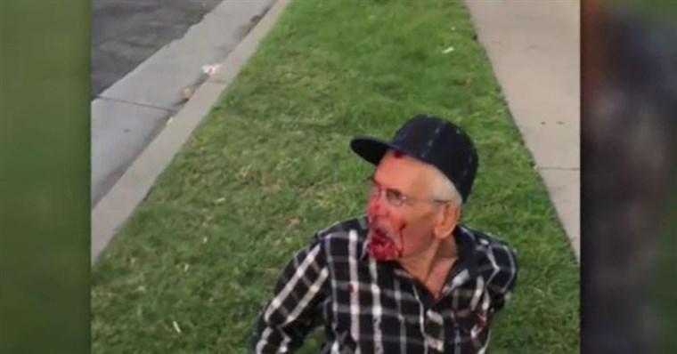 Aresztowano kobietę podejrzewaną o zaatakowanie cegłą 92-latka w Los Angeles