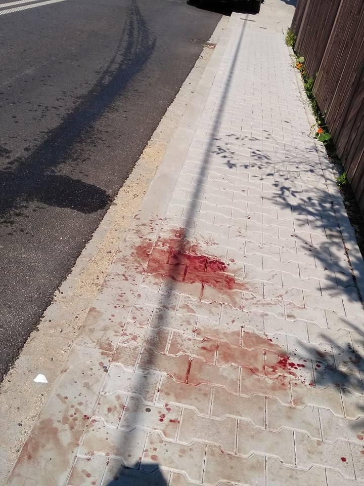 Podhale: Szaleniec atakował ludzi tłuczkiem do mięsa na ulicy. Są ranni!