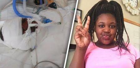 12-latka z Detroit podpaliła się bo podjęła fire challenge