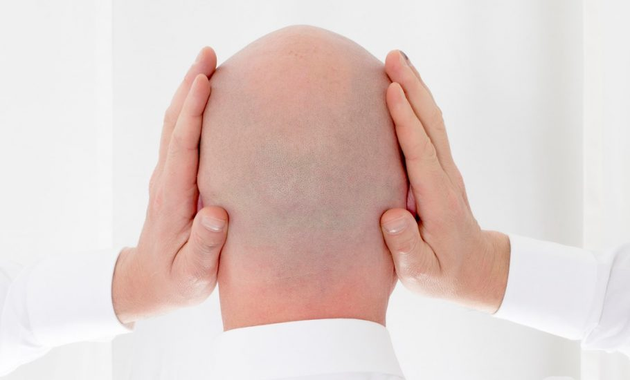 Szansa dla łysiejących. Znaleźli sposób na powstrzymanie wypadania włosów.