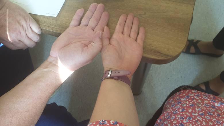 Łódź: Naukowcy zbadali długość palców i… dokonali przełomowego odkrycia